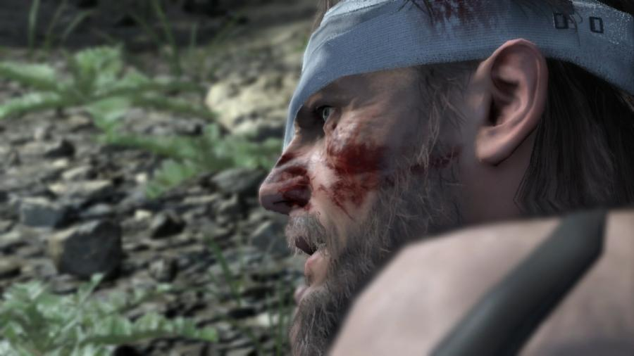 Metal Gear Solid V - The Definitive Experience Screenshot 4